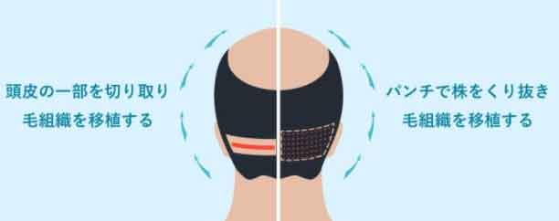 頭皮の一部を切りとる、パンチで毛根ごとくりぬき移植。