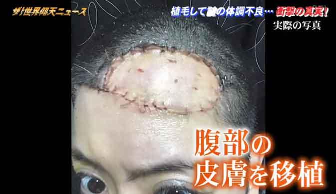 皮膚の摘出手術で対応