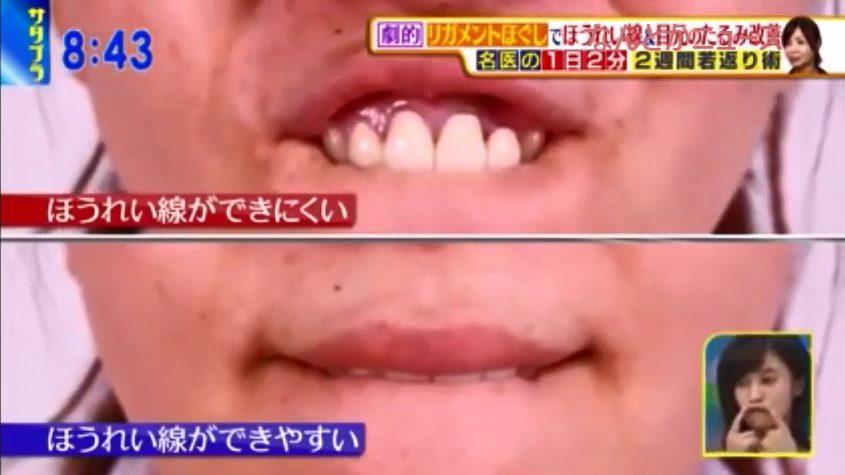 判定:これが上がらない人は口のまわりの筋力が弱く、ほうれい線ができやすいそうです。